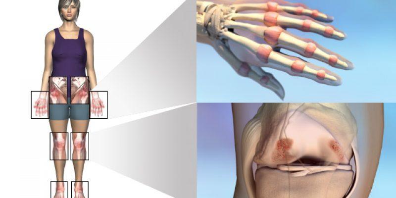 Виды и формы ревматоидного артрит