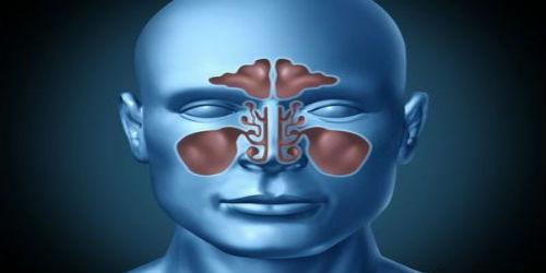 Гайморит: причины, симптомы, лечение, народные средства