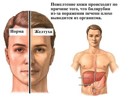 Болезнь желтухой