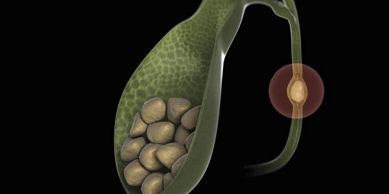 Причины желчнокаменной болезни