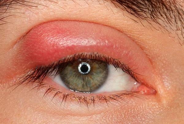 Как быстро и эффективно вылечить ячмень на глазу