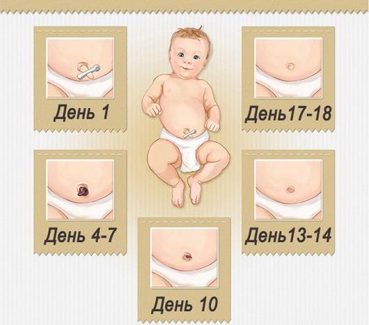 Как правильно ухаживать за пупком новорожденного?