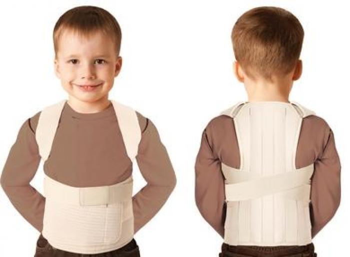 лечение сколиоза у ребенка