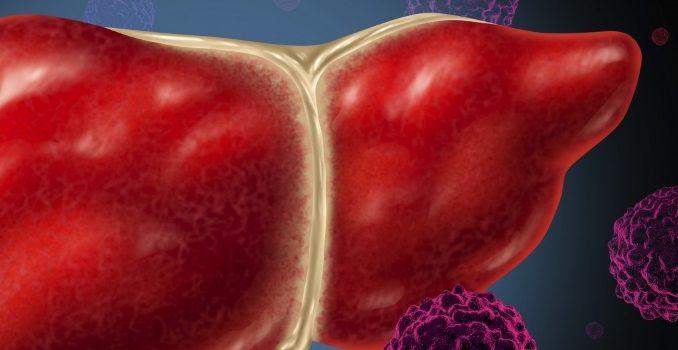 Диагностика гепатита А: лабораторная и ультразвуковая