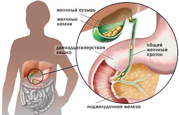 Причины болезни холециститом