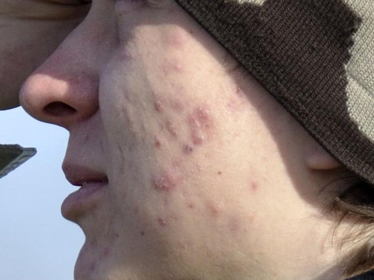 Демодекоз у человека на лице