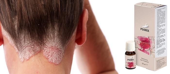 Psorix от псориаза: комплекс для естественного избавления от болезни, ее причин и симптомов!