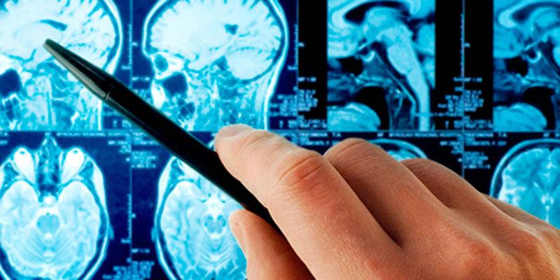 лечение отека мозга