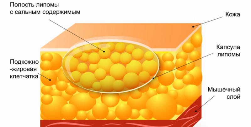 лечение липоматоза