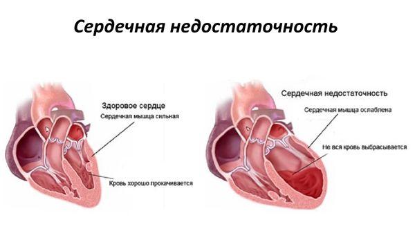 Сердечная недостаточность - одно из последствий боррелиоза