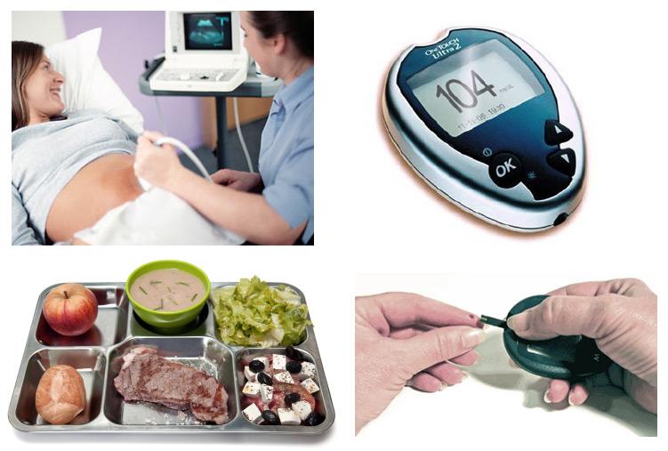 Чем опасен сахарный диабет во время беременности?