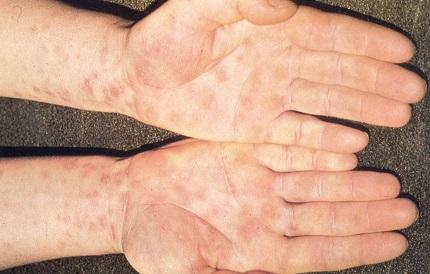 Проявление сифилиса на руках