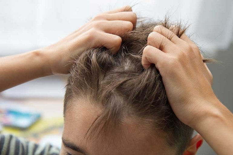 Почему часто чешется голова