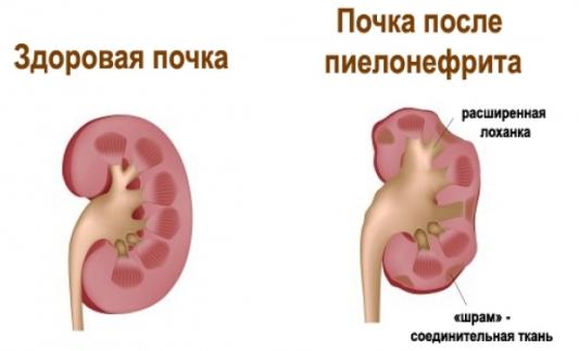 Лечение нефрита у детей