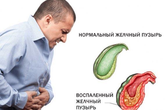 как вылечить воспаление желчного пузыря