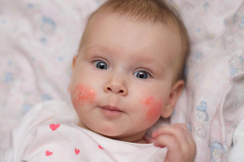 Какие могут быть последствия повышенного гемоглобина у ребенка?