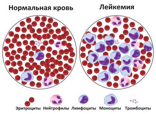 Болезнь лейкоз