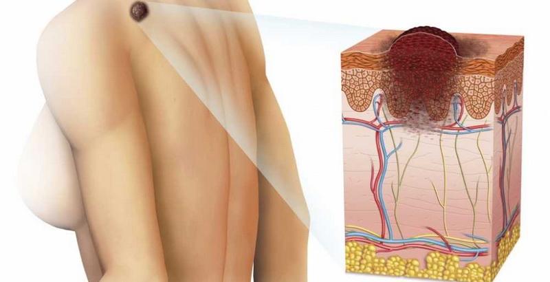 Причины карциномы кожи