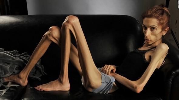 Заболевание кахексией
