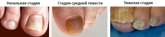 Перекись водорода от грибка ногтей на руках и ногах