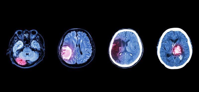 Причины менингиомы