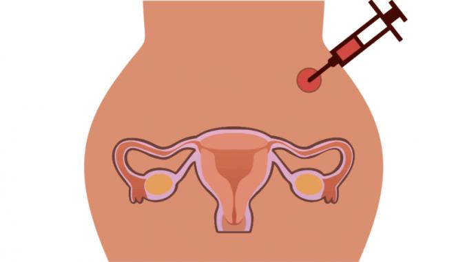 Стимуляция овуляции гонадотропинами при поликистозе яичников