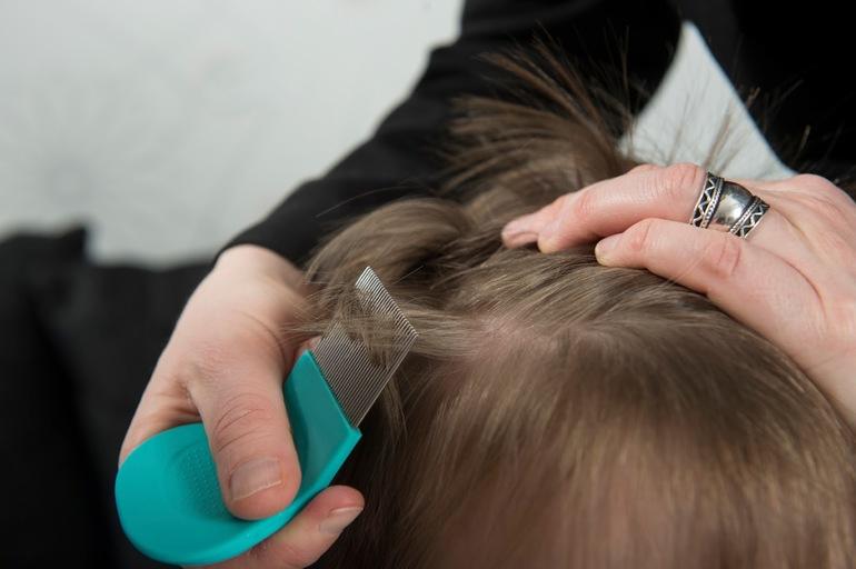 Как избавить ребенка от вшей и гнид