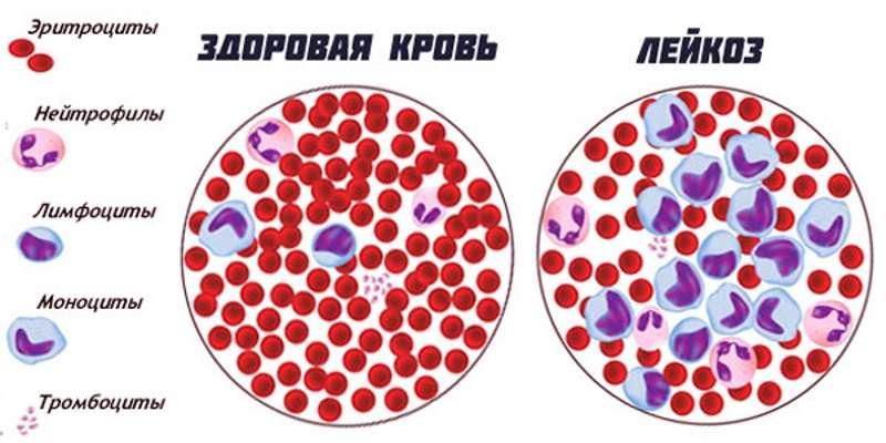 Как вылечить лимфолейкоз