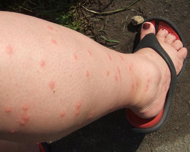 Следы от укуса комара