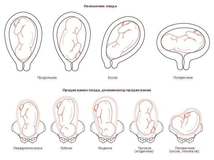 Какое бывает предлежание плода при беременности и можно ли его откорректировать?