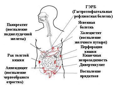 Болит при воспалении поджелудочной