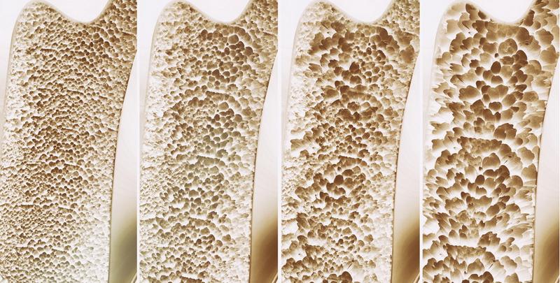 Функции костной ткани