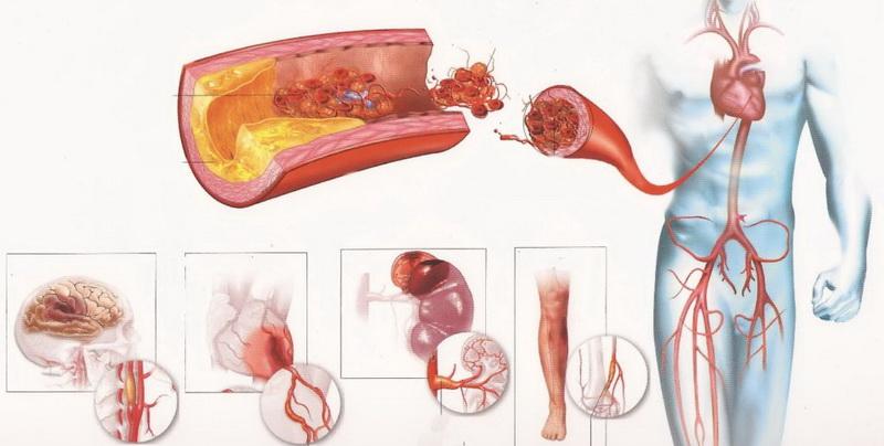Виды заболеваний сердца