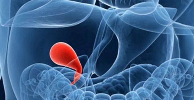 Диагностика острого и хронического холецистита