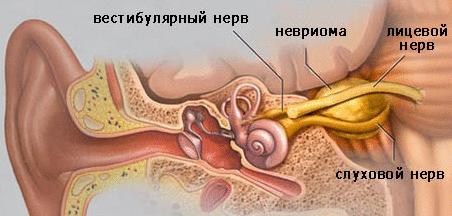 Лечение невриномы
