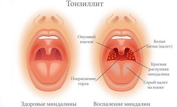Причины тонзиллита у детей