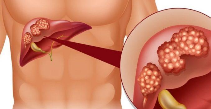 Что такое цирроз печени: это рак или нет?