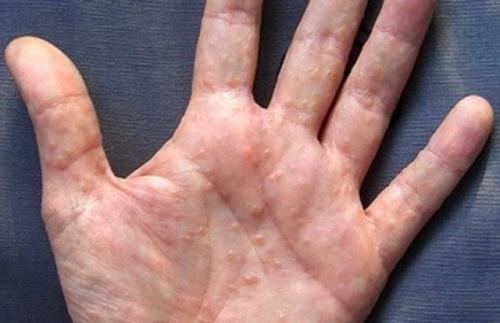 Симптомы иерсиниоза