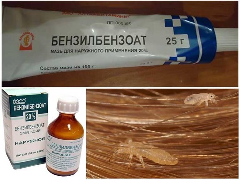 От чего помогает препарат Бензилбензоат