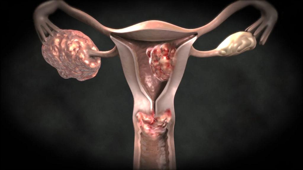 Опасна ли уреаплазма при планировании беременности?
