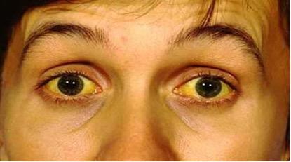 Другие симптомы желтухи