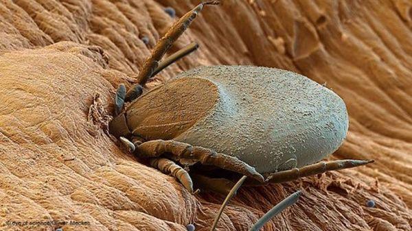 Нельзя давить насекомое, если оно ползает по коже