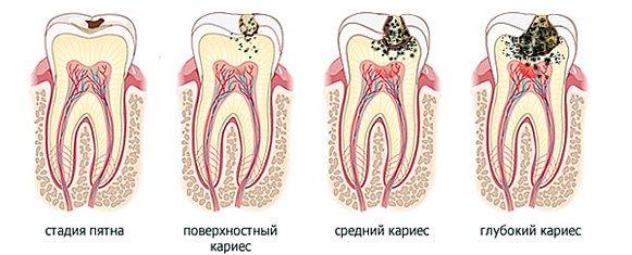 признаки кариеса зубов