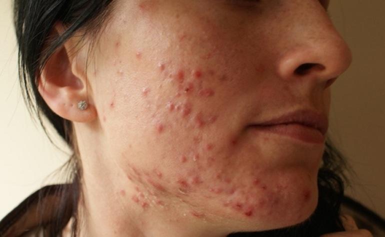 Как лечить демодекоз на коже