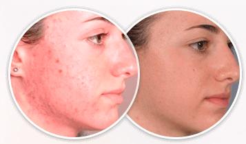 Spot Cleaner: очиститель пор для лица