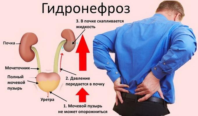 Причины гидронефроза