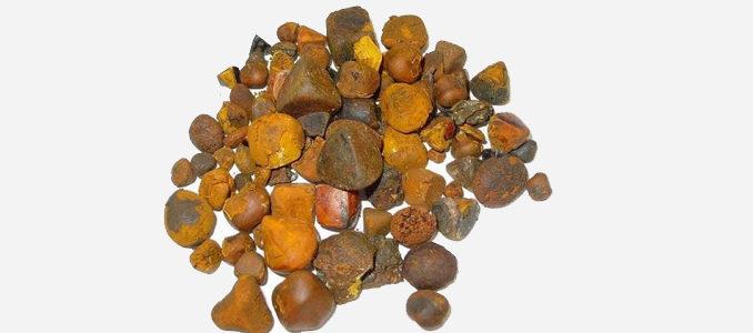 Камни в печени: симптомы у женщин, причины и лечение