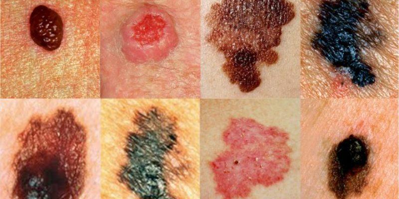 Причины злокачественной меланомы