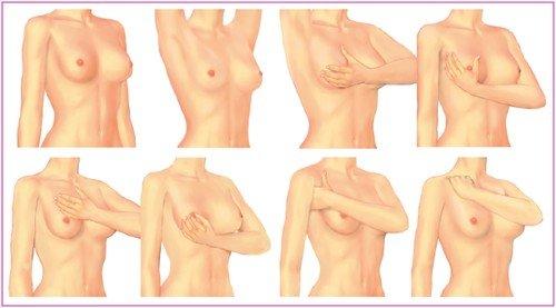 Обследование молочной железы