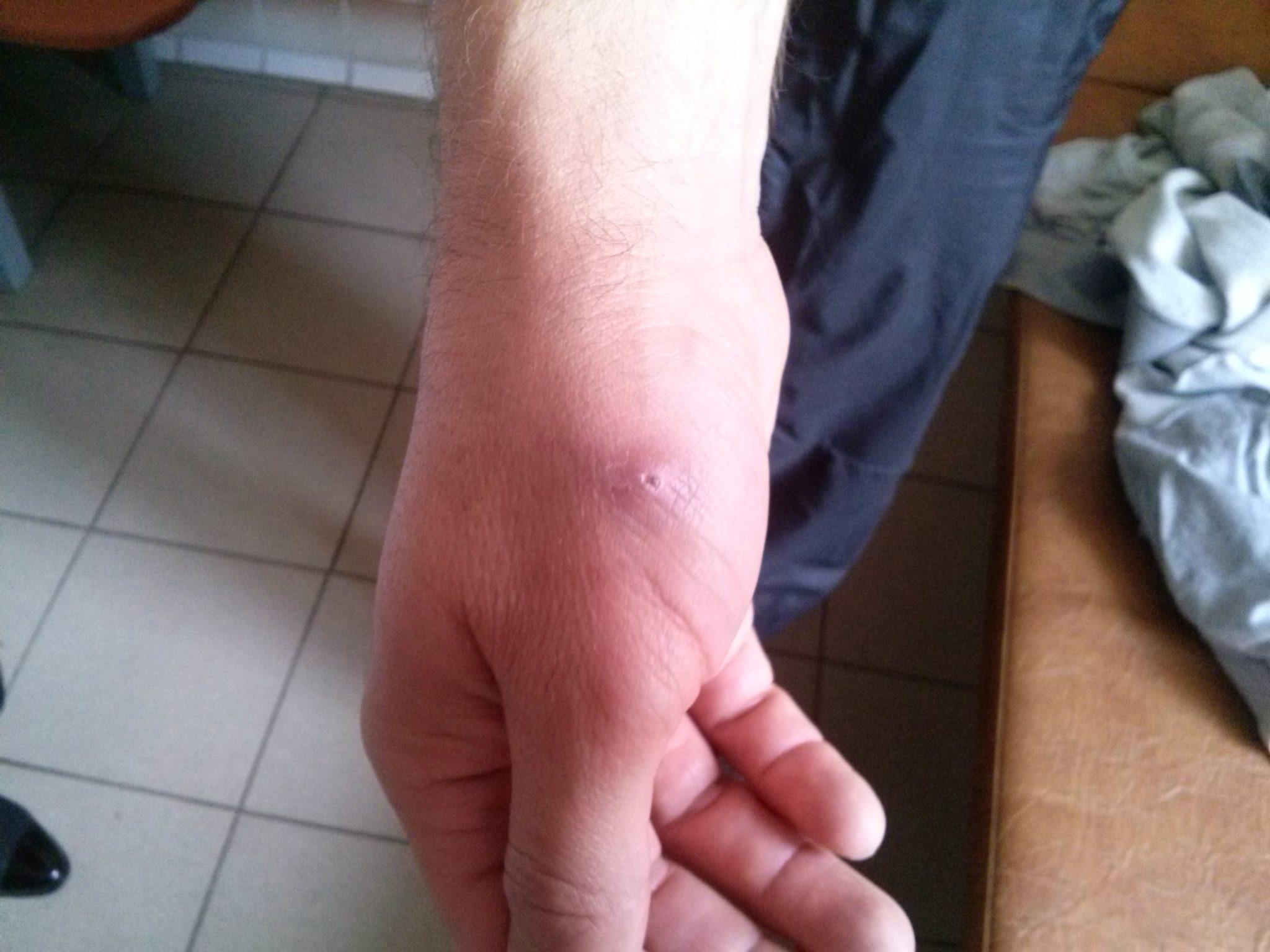 Проявление болезни содоку после крысиного укуса
